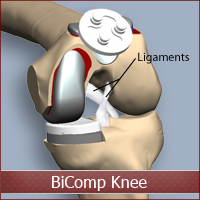 BiComp Knee Replacement